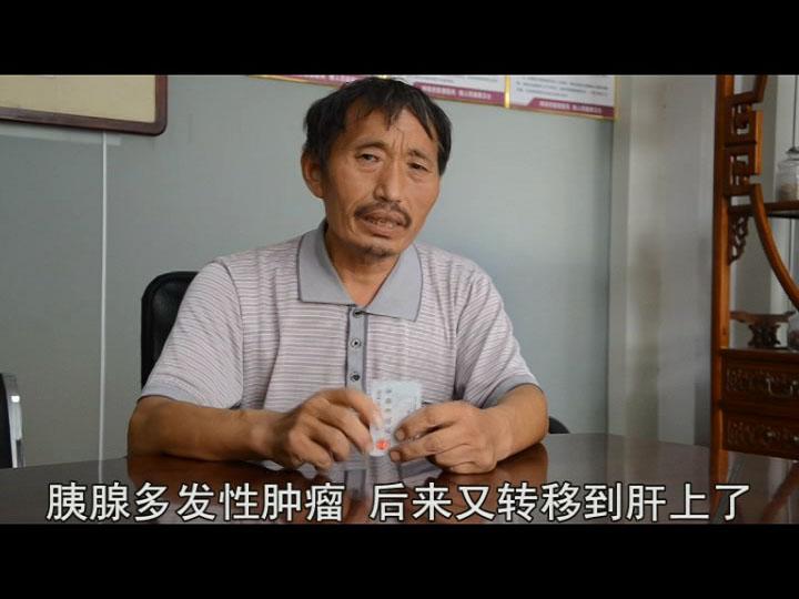 济南中医肿瘤医院让胰腺癌晚期肝